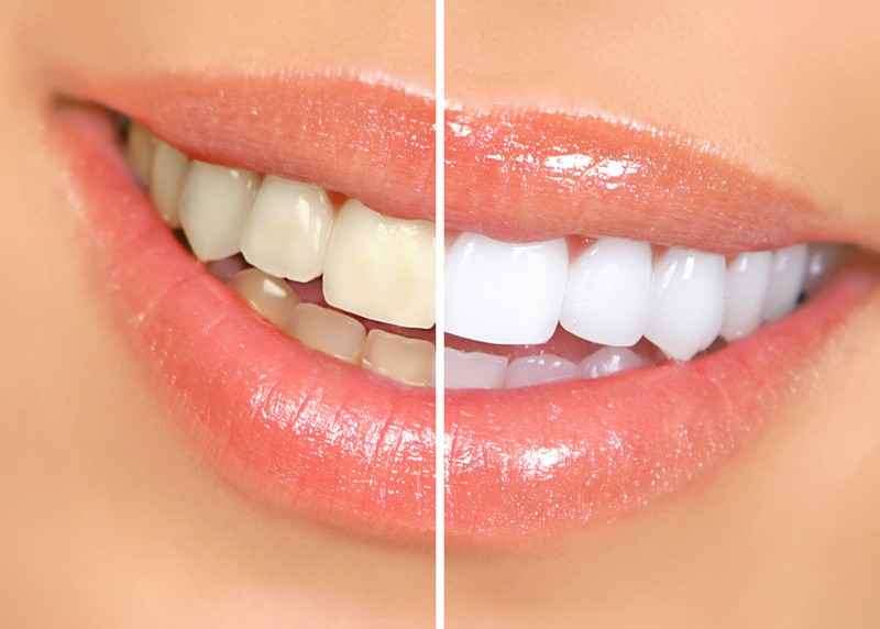 Teeth Whitening  Ruidoso, NM